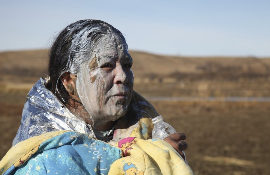 Native American woman recovers from being pepper sprayed by police at Standing Rock, near Cannon Ball, N.D   Source: NPR, John L. Mone/AP